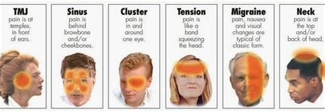 Management of persistent idiopathic facial pain jcda jpg 620x215